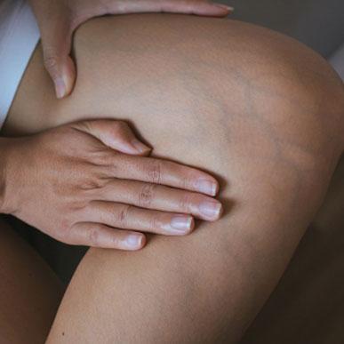 Pajączki na nogach – czy można ich uniknąć?